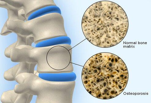 osteoporosis_s1_bone_density